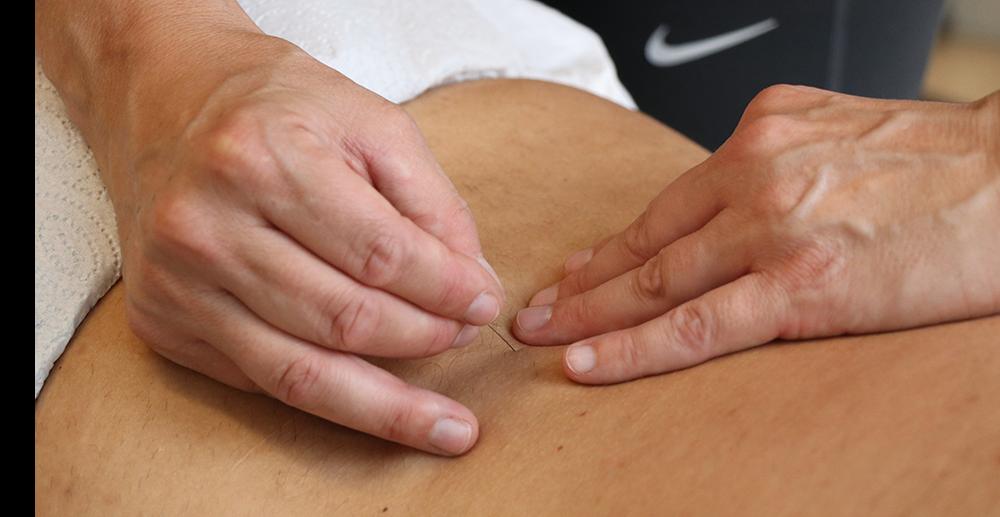 Akupunktur. FYSIOLIFE i Kolding.